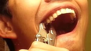 Gościu sam wyrywa sobie zęba za pomocą kombinerek