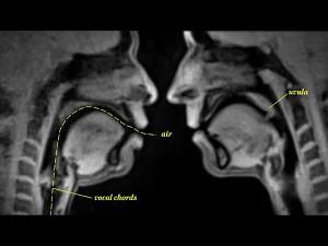 Seks (i nie tylko) widziany z pomocą rezonansu magnetycznego