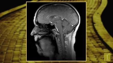 Śpiewanie podczas rezonansu magnetycznego głowy