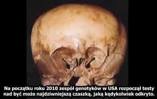Tajemnica czaszki gwiezdnego dziecka