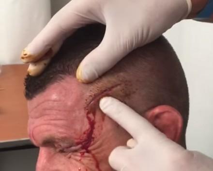 Przychodzi do lekarza bokser z rozciętą głową, a ten robi sobie kabarecik